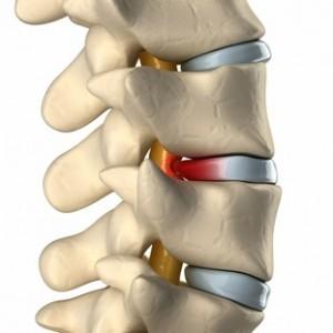 علت علائم دیسک گردن چیست درمان با زالو