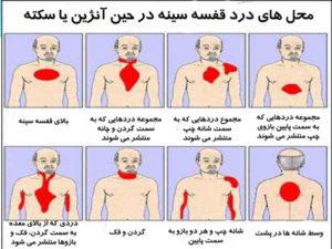 علائم های سکته قلبی دلایل سکته ی قلبی پیشگیری درمان
